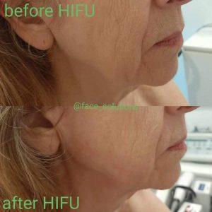 Hifu4